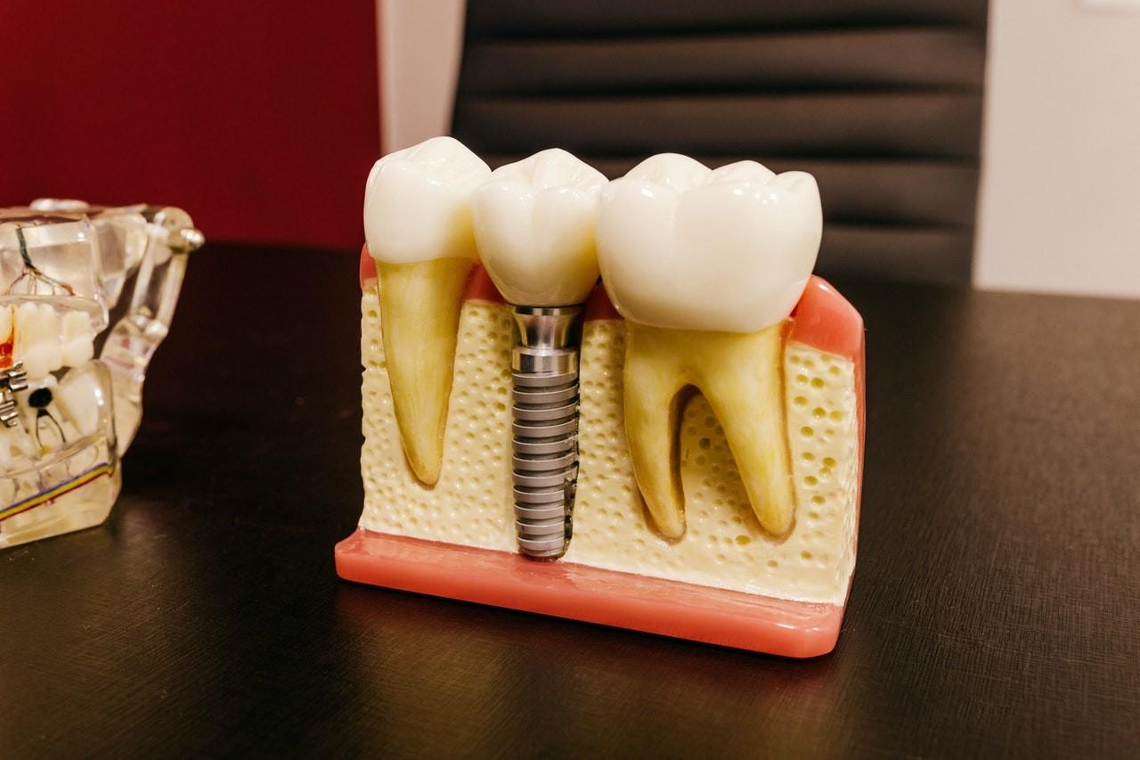 All-on-4 Teeth Implants